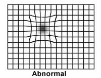 Abnormal Amsler Grid Example