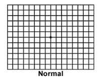 Normal Amsler Grid Example