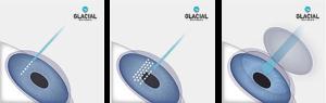 Laser Eye Surgery Diagram