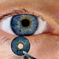 Change eye color permanently? The importance of your LASIK surgeon
