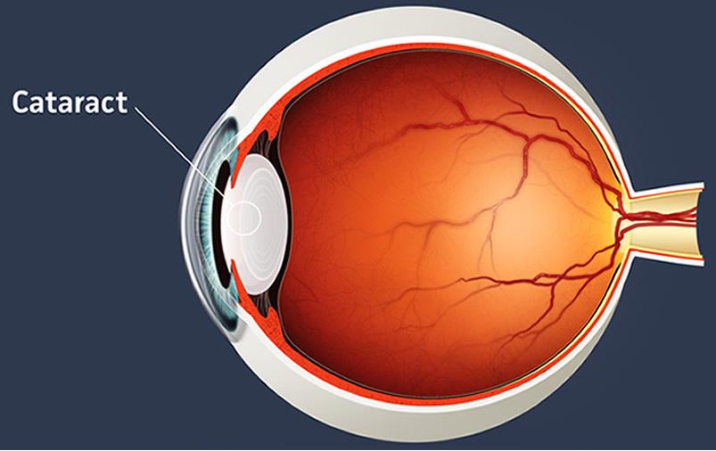 diagram of cataract