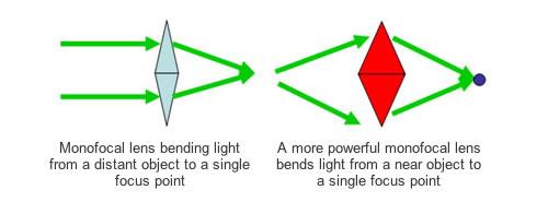 Monofocal Lens Implant Example